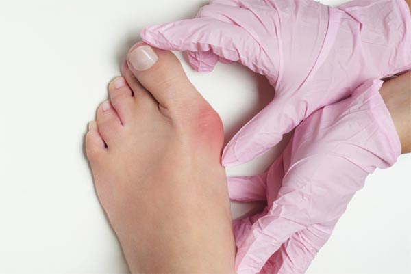 Causes of the foot deformities
