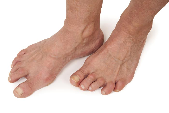 What Causes Foot Deformities